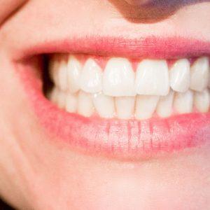 Ayurveda Studie Zahnfleischentzündungen & Plaque