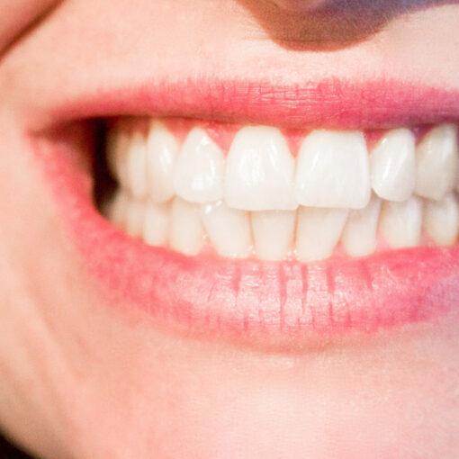Mit Ayurveda Zahnfleischentzündungen und Plaque behandeln